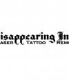 Disappearing Ink Laser Tattoo Removal